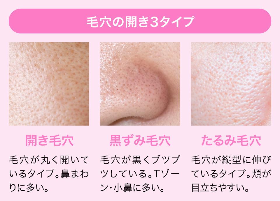 鼻 の 毛穴 なくす 方法 毛穴をなくす方法!エステ員の教える洗顔方法やスキンケアのポイント6...